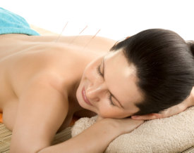woman on acupuncture treatment